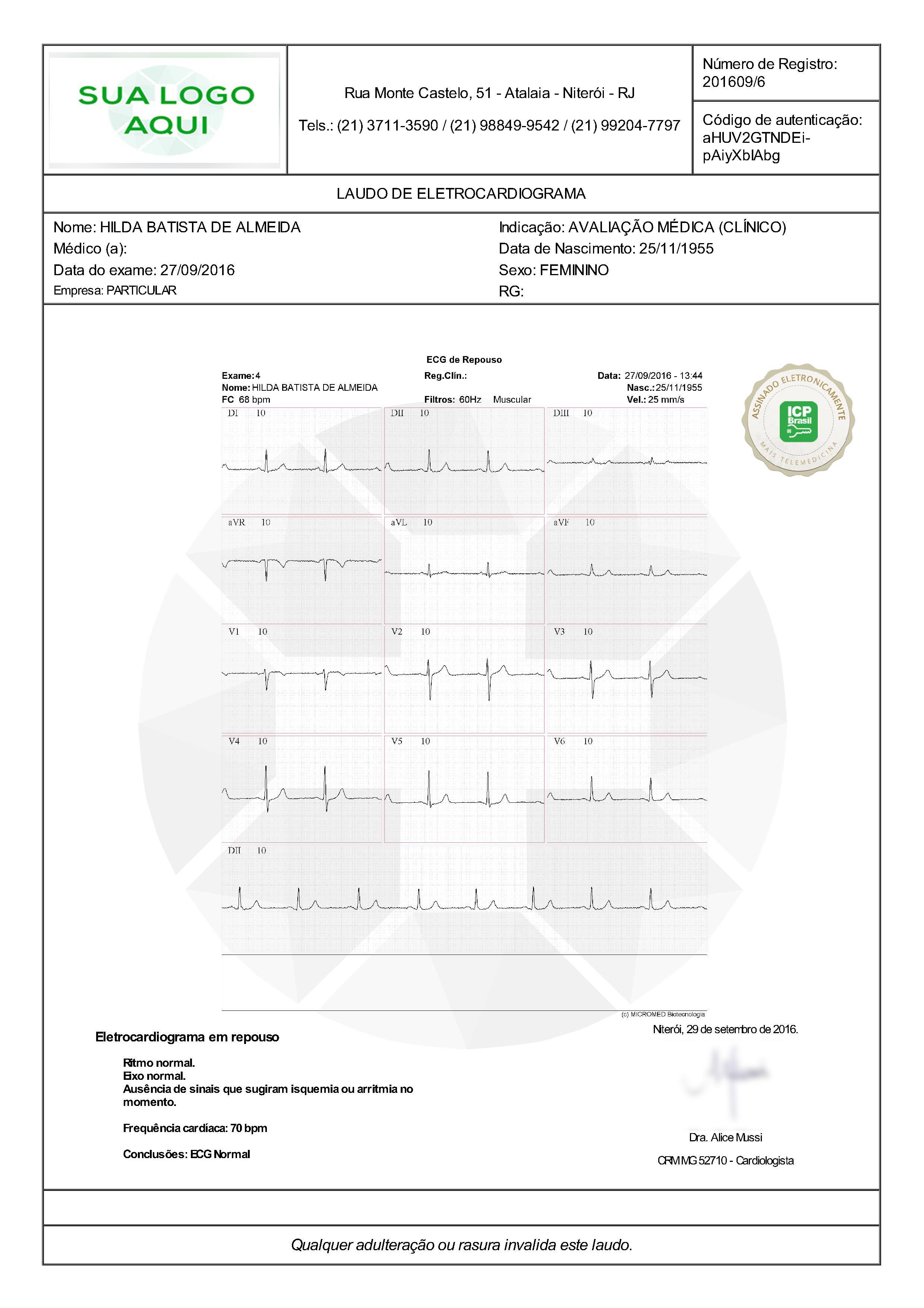 laudo médico de um eletrocardiograma